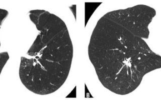 Эмфизема — клиническая картина болезни, все о гомеопатии