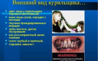 Гнилостный запах изо рта, напоминающий тухлые яйца (сероводород), все о гомеопатии