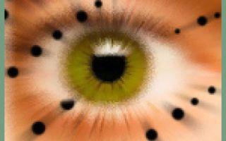 Искры в глазах — причины и лечение, все о гомеопатии