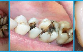 Болят зубы с одной стороны — основные причины, все о гомеопатии