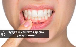 Чешутся десна и зубы (взрослые) — все о гомеопатии