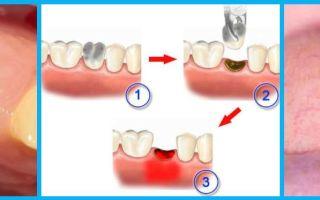 Болит зуб (только ночью) — все о гомеопатии