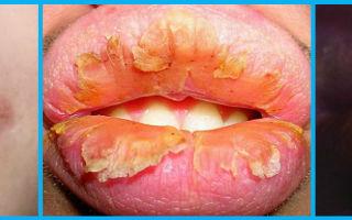 Воспаление губ (кожная болезнь) — заболевание с характерным высыпанием сгруппированных пузырьков на коже и слизистых, все о гомеопатии