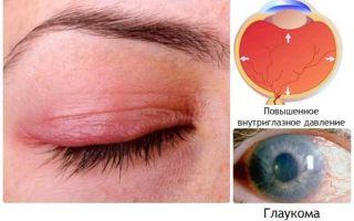 Повышенное глазное давление — все о гомеопатии