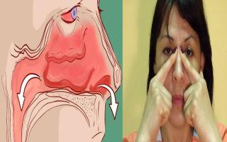 Болит переносица при насморке — все причины и опасности, все о гомеопатии