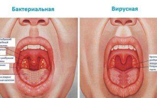Ацидум сульфурикум (Acidum sulfuricum) — серная кислота, все о гомеопатии