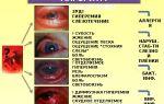 Светобоязнь (светочувствительность) глаз — все о гомеопатии