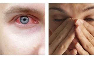 Глаз слезится и покраснел — в чем опасность состояния, все о гомеопатии