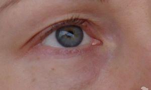 Синяки в уголках глаз у переносицы — все о гомеопатии