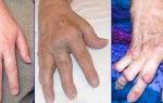 Артрит и болезни суставов — лечение гомеопатическими средствами, все о гомеопатии