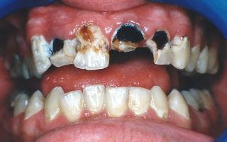 Крошатся зубы — все о гомеопатии