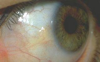 Желтые белки глаз — все методы терапии, все о гомеопатии