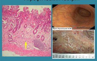Гастрит (Gastritis) — воспалительно-дистрофические изменения слизистой оболочки желудка, все о гомеопатии: как правильно лечить и вовремя диагностировать