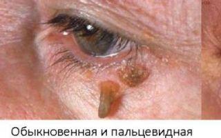 Кониум — полный обзор, все о гомеопатии