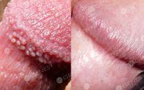 Белый налет на половых губах – причины появления, все о гомеопатии