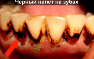 Черный налет на зубах — все о гомеопатии
