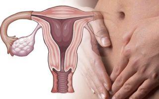 Дисфункция яичников (синдром Штейна-Левенталя) — с нарушениями основных функций, все о гомеопатии