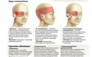 Почему при низком давлении болит голова — какие самые частые причины, все о гомеопатии
