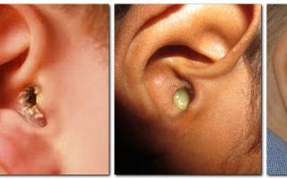 Что значат гнойные выделения из ушей и как их лечить — все о гомеопатии