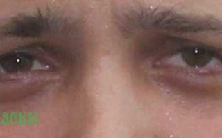 Синяки под глазами (мужчины) — основные причины и методы борьбы с ними, все о гомеопатии