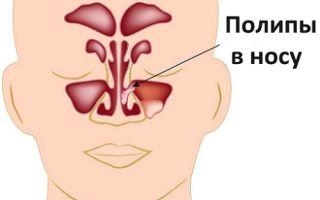 Ночью закладывает нос (насморка нет, взрослые) — все о гомеопатии