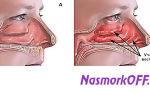 Жжение в носу при насморке — все о гомеопатии