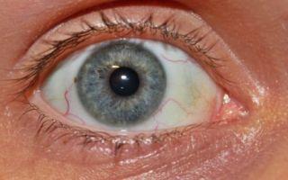 Красные сосуды в глазах — как их убрать, почему появляются, все о гомеопатии