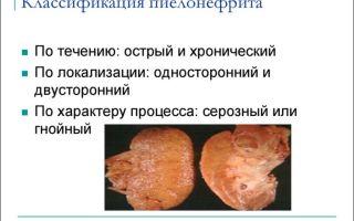 Пиелонефрит —  неспецифический воспалительный процесс, все о гомеопатии