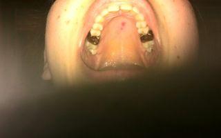 Красные пятна на нёбе — что представляет собой сыпь на слизистых, все о гомеопатии