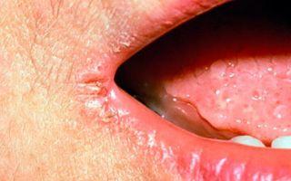 Болячки в уголках губ (заеды) — чем их лечить, все о гомеопатии