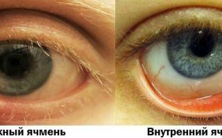 Глаз покраснел и гноится — причины и лечение, все о гомеопатии