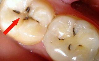 Черные полоски на зубах — все о гомеопатии
