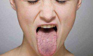 Язвочки на половых губах — диагностика заболевания и лечение, все о гомеопатии