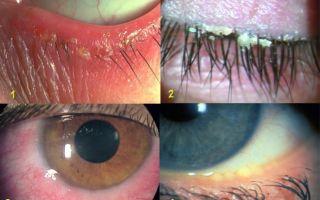 Глаза чешутся и слезятся — как лечить аллергию, все о гомеопатии