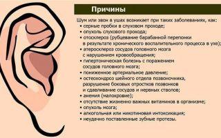 Почему возникает треск в ушах — лечение скрипа и хруста, все о гомеопатии