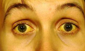Желтизна (желтая или зеленая кожа) вокруг рта — все о гомеопатии