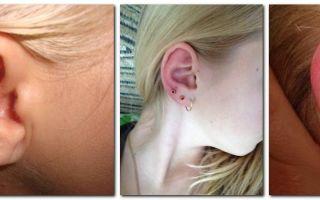 Что делать, если ухо внутри опухло и болит? — все о гомеопатии