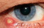 Прыщ на веке глаза — все о гомеопатии