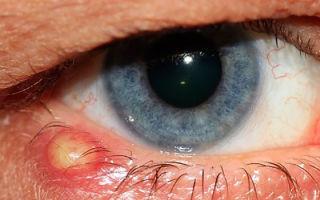 Прыщ на веке глаза — причины появления, все о гомеопатии