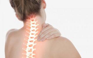 Остеохондроз — хроническое, рецидивирующее заболевание, все о гомеопатии
