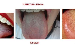Бело-желтый налет на языке — все о гомеопатии