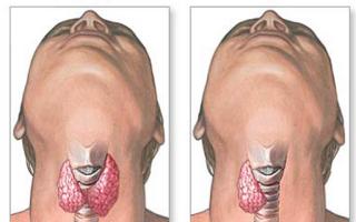 Зоб (струма) — стойкое увеличение щитовидной железы, все о гомеопатии