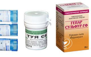 Лечение бородавок гомеопатией — доброкачественного новообразования на коже, все о гомеопатии