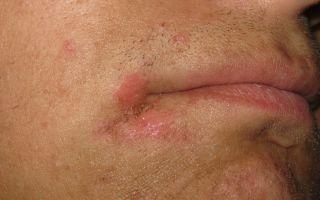 Шелушится кожа вокруг рта — особенности лечения, все о гомеопатии