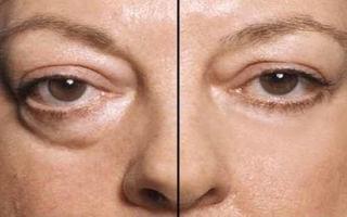 Мешки под глазами — все о гомеопатии