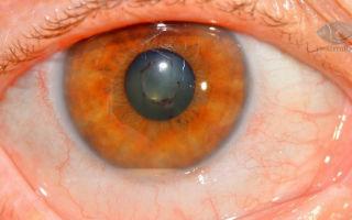 Воспаление глаз — все о гомеопатии