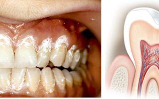 Чувствительность зубов — все о гомеопатии
