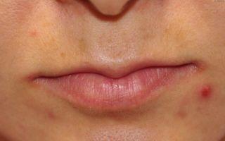 Покраснение в уголках губ — что делать, все о гомеопатии