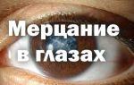 Мерцание в глазах — причины глазной мигрени, все о гомеопатии