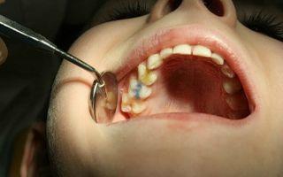 Гной в зубе — причины появления, все о гомеопатии